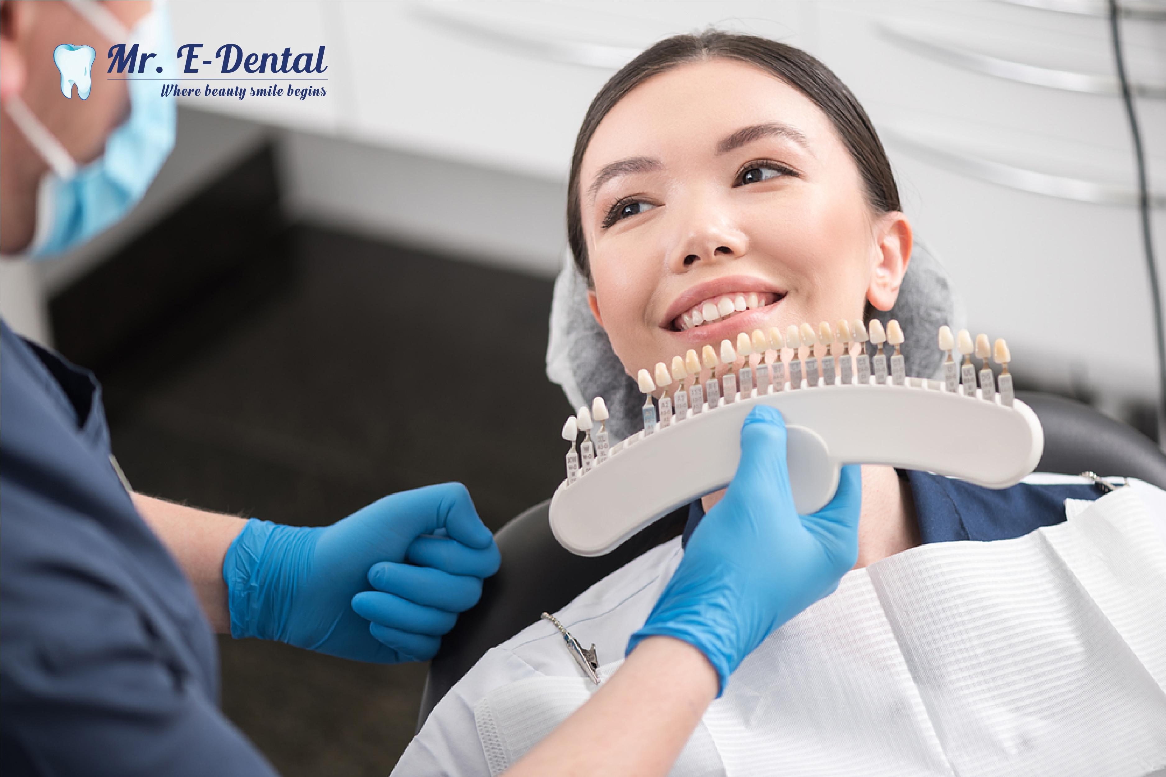 Dán veneer răng sứ là phương pháp thay áo mới cho răng hoàn hảo